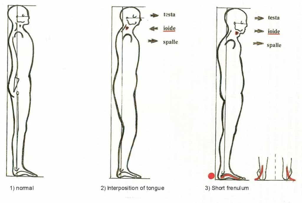 postura corporal por frenillo lingual